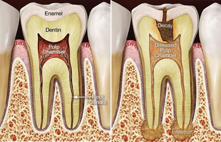 Root canal to save a tooth in Wagga