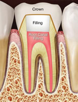 Root Canal (Endodontic) Treatment